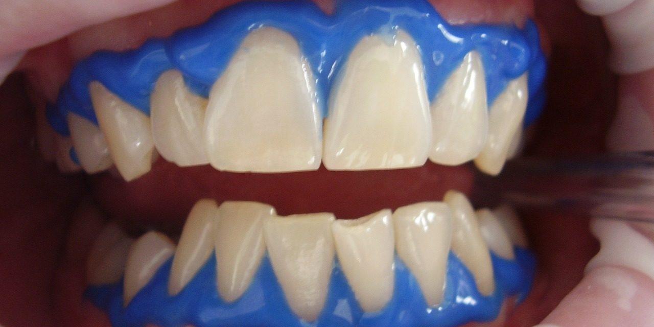 wybielanie zębów łódź